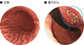 胃がん|部位別がん基礎講座|が...
